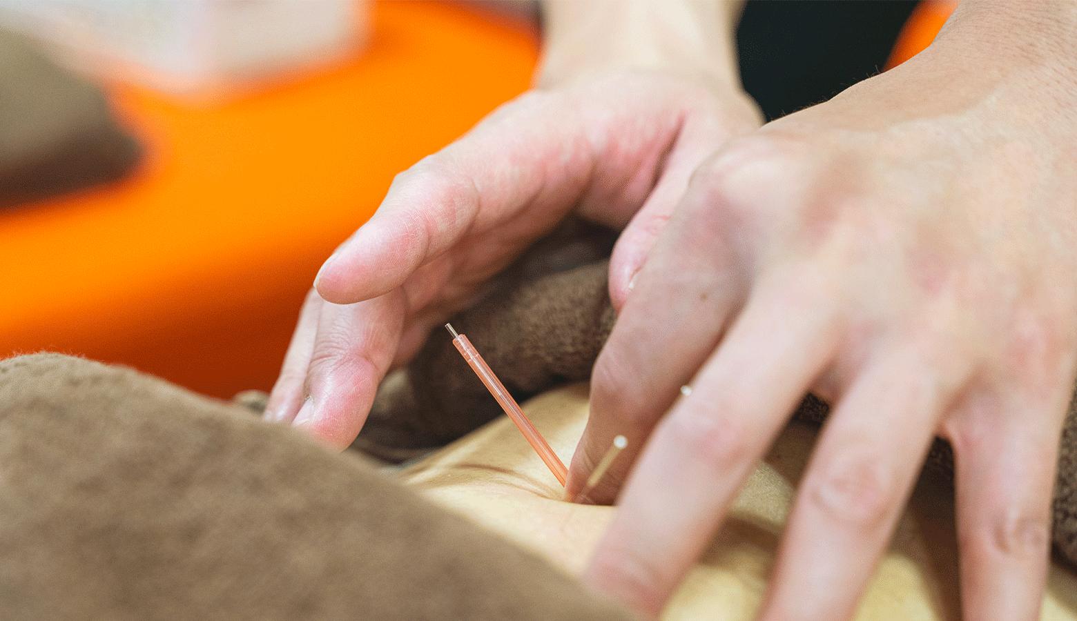 デイサービスで施術する鍼灸師のイメージ
